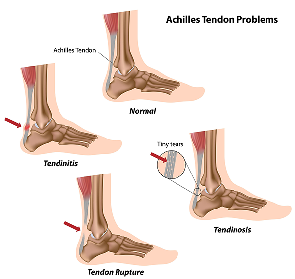 Woodmere Achilles Tendonitis